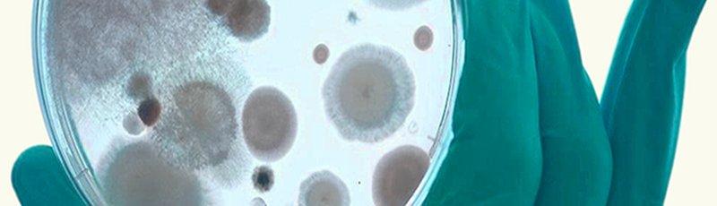Abbattimento Odori - soluzione biologica per il potenziamento di uno scrubber